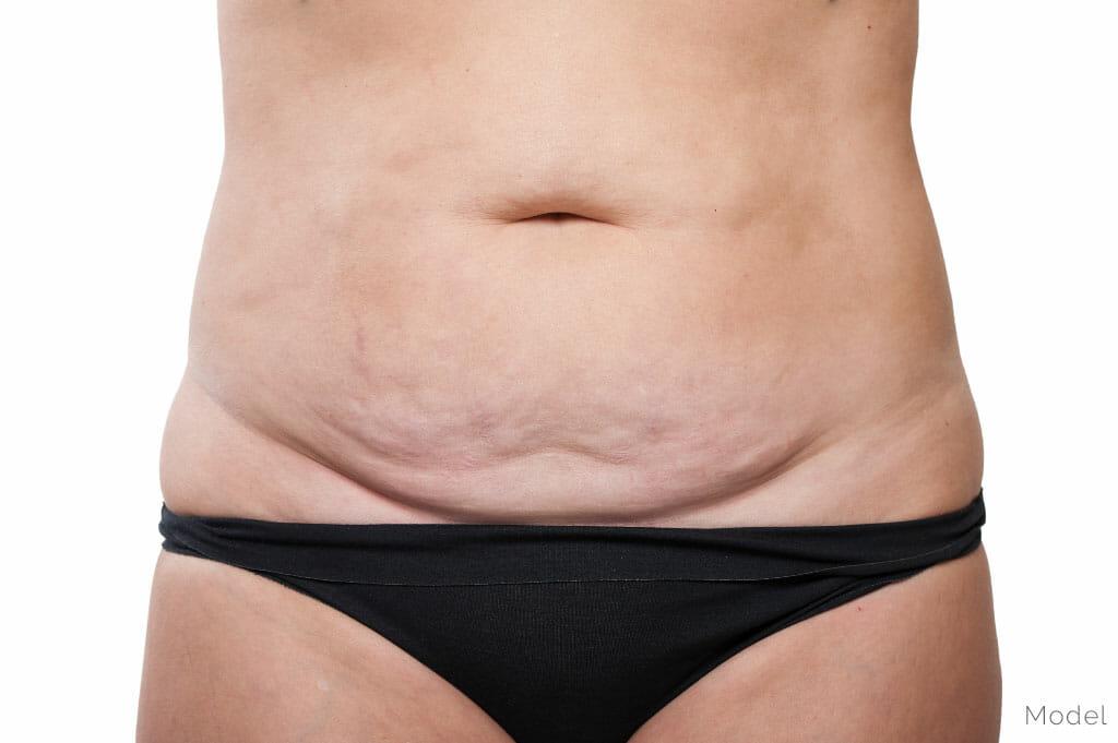 La cirugía plástica después de una gran pérdida de peso