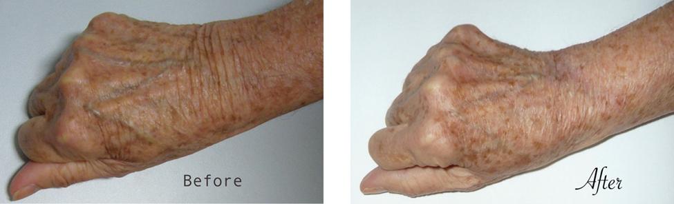 Estiramiento (lifting) quirúrgico de la mano