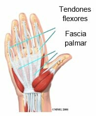 Laceración del tendón flexor