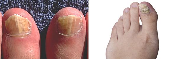 Onychomycosis (Nail Fungus)