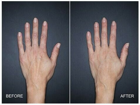 Hand Rejuvenation with Fat Grafting vs Fillers