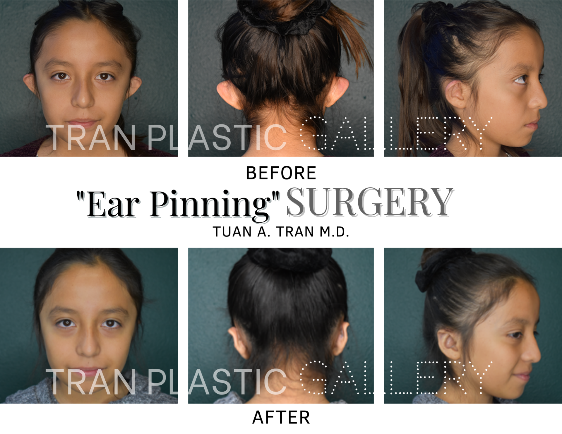 Tran Plastic Surgery - Ear Pinning
