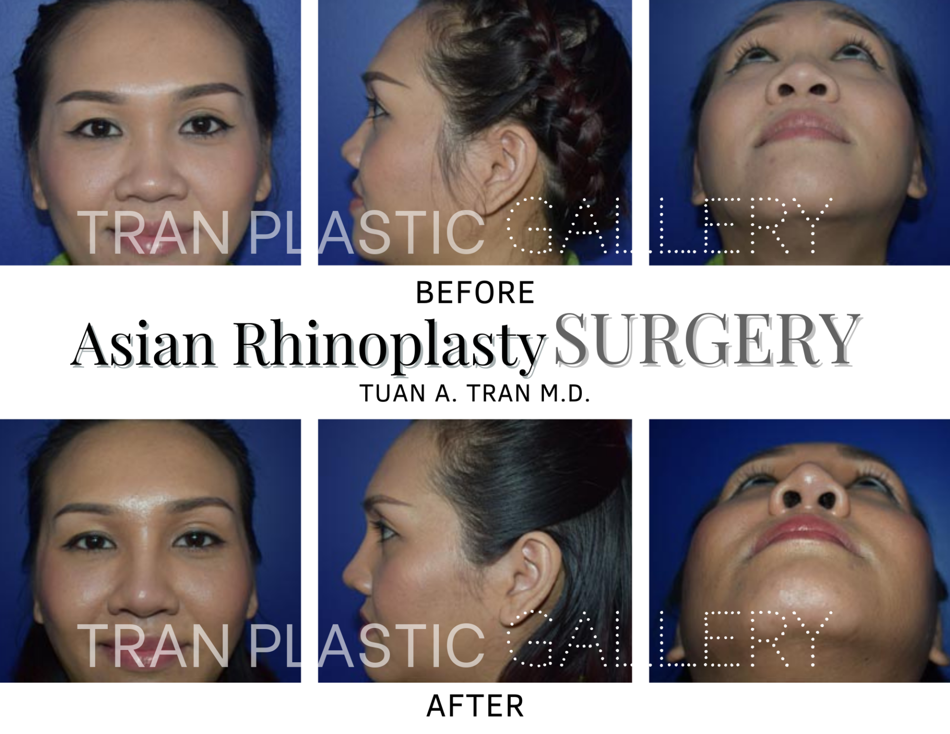 Tran Plastic Surgery - Asian Rhinoplasty