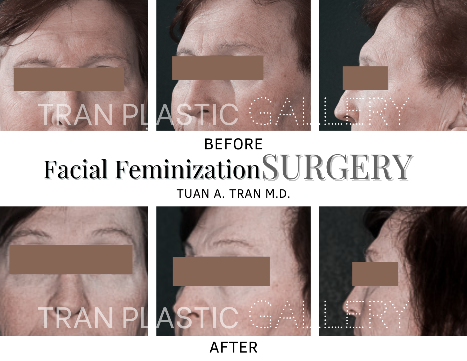 Tran Plastic Surgery - Facial Feminization