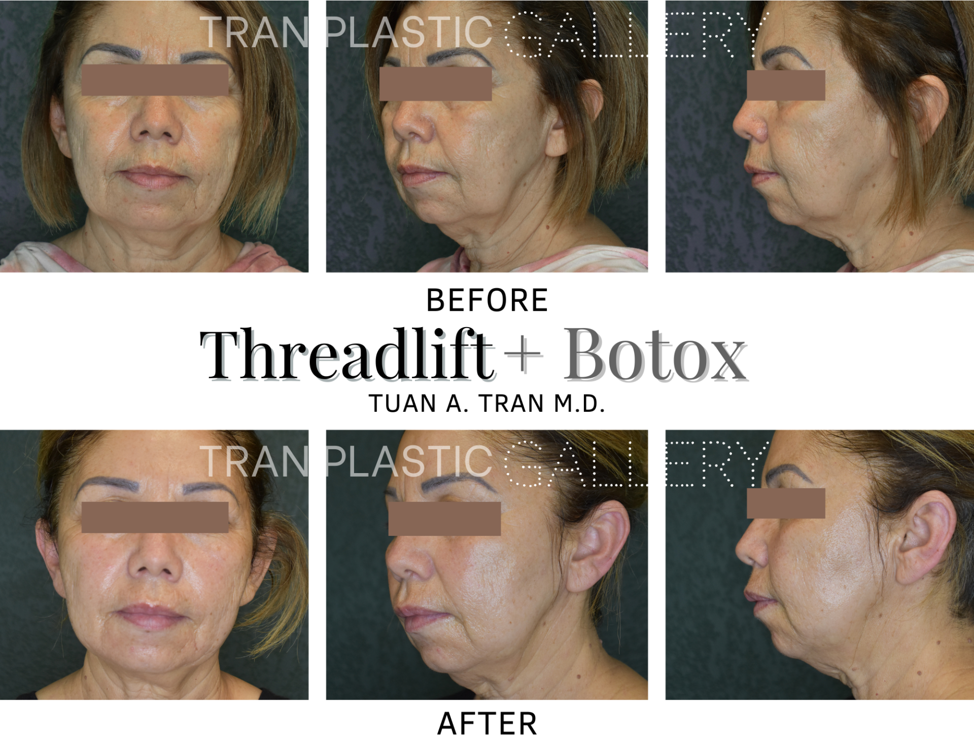 Tran Plastic Surgery - Threadlift Botox
