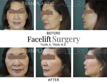 Tran Plastic Surgery - Facelift