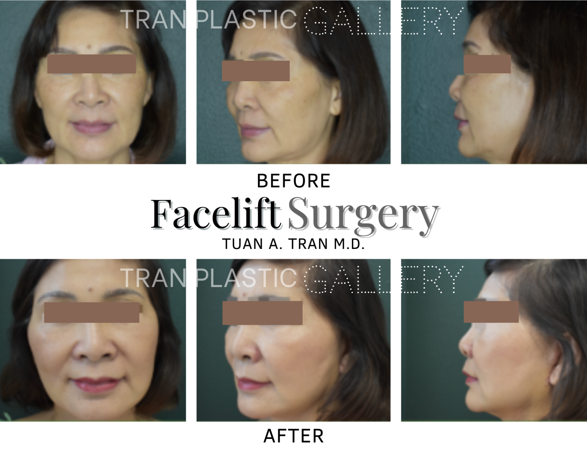 Tran Plastic Surgery - Facelift