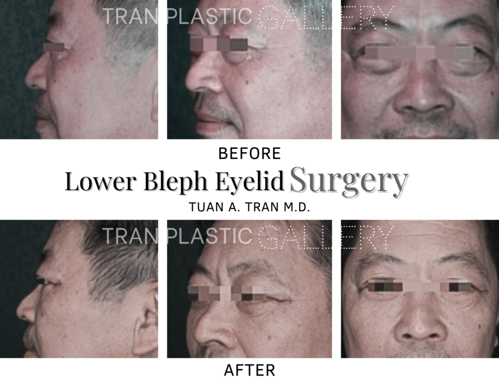 Tran Plastic Surgery - Lower Bleph Eyelid Surgery