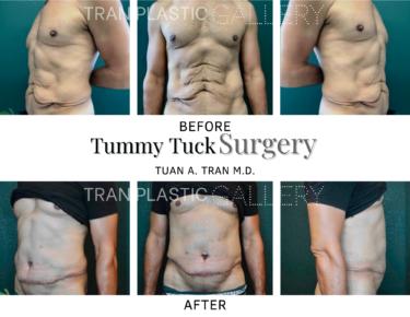 Tran Plastic Surgery - Tummy Tuck