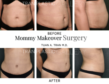 Tran Plastic Surgery - Mommy Makeover