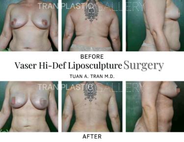 Tran Plastic Surgery - Vaser Hi-Def Liposculpture