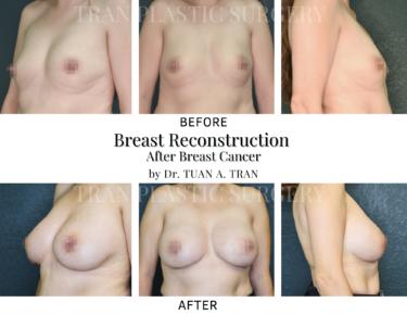 Tran Plastic Surgery - Breast Reconstruction
