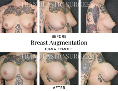 Tran Plastic Surgery - Breast Augmentation