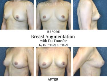 Tran Plastic Surgery - Breast Augmentation with Fat Transfer
