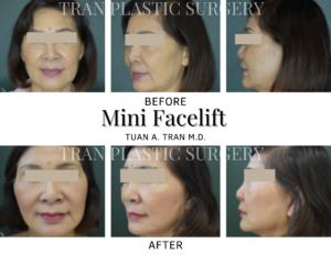 Tran Plastic Surgery - Mini Facelift