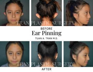 Tran Plastic Surgery - Ear Pinning