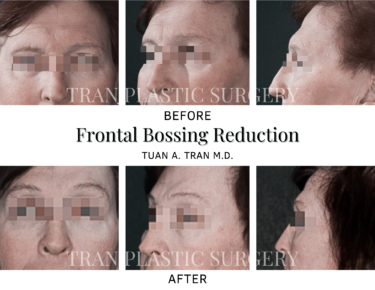 Tran Plastic Surgery - Frontal Bossing Reduction