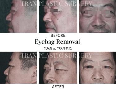 Tran Plastic Surgery - Eye Removal